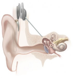 Cochlear_implant in sound quality article